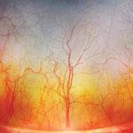 صورة مجهرية مدهشه لعروق العين البشرية...