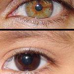 هناك أشخاص يملكون لونين مختلفين لعيونهم بسبب نقص فى صبغة الميلانين تسمى هذة الحالة (Heterochromia)