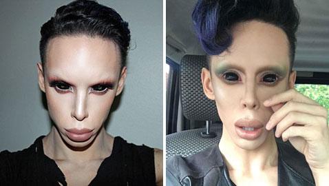 جنون عمليات التجميل.. شاب ينفق الاف الدولارات ليتحول لكائن فضائي