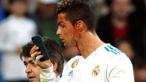 بالصور.. كريستيانو رونالدو تعرض لإصابة قوية غرقت وجهه بالدماء
