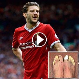 مرض غريب حوّل أصابع قدمي نجم ليفربول الى اللون الأصفر!