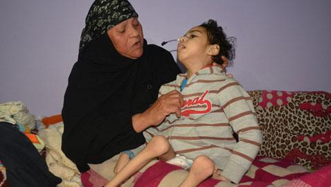 صور طفل مصري يكاد يموت! تحوّل لهيكل عظمي وينتظر رد وزارة الصحةّ!