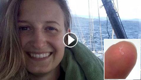 فيديو وصور: استخراج 14 دودة  نقلتها ذبابة الى عين امرأة أمريكية