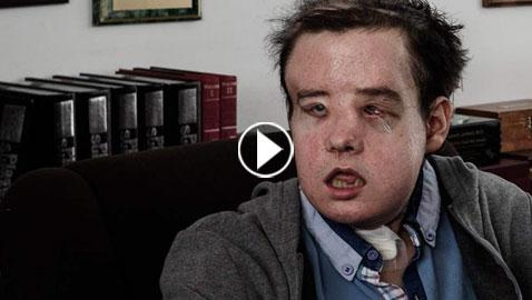 بالفيديو والصور: قصة صبر ومعاناة لا متناهية لرجل فرنسي بثلاثة وجوه!