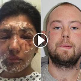 فيديو بريطاني عنصري يرش الأسيد على وجه عارضة مسلمة ويشوهها!