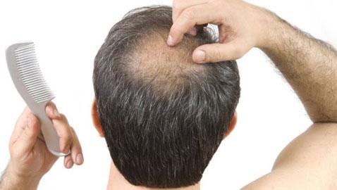 اكتشاف علاج مذهل يحارب الصلع ويوقف تساقط الشعر خلال أيام قليلة