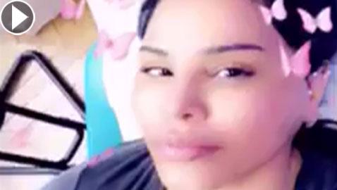 فيديو احلام بدون مكياج تكشف عن خضوعها لعملية تجميل وحقن الشفاه!