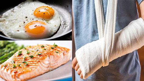 الأسماك والبيض.. 7 أغذية تساعد في التئام كسور العظام