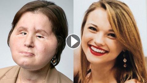 بالفيديو والصور.. نجاح عملية زراعة وجه لفتاة بعد محاولتها الانتحار!