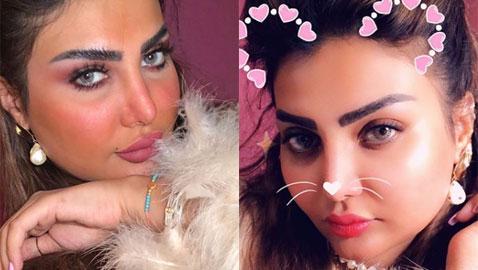 فنانة كويتية تبالغ بعمليات التجميل والجمهور: سينفجر وجهك من كثرة النفخ!