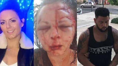 صور مروعة.. إعتداء وحشي على سائحة بريطانية في تركيا