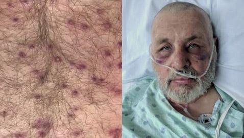رجل أمريكي ينجو من الموت بأعجوبة بعد تعرضه لأكثر من 600 لدغة من النحل القاتل
