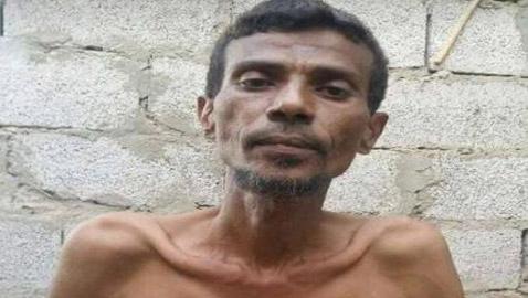 وفاة الفنان اليمني الشهير سالم بحر بسبب الجوع! صورته الاخيرة مؤلمة