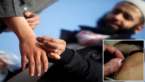 بالصور: مصري يستخدم سم النحل لعلاج الأمراض وتحسين المزاج!