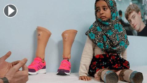 طفلة سورية تستبدل المعلبات الفارغة بأطراف اصطناعية.. اليكم قصتها