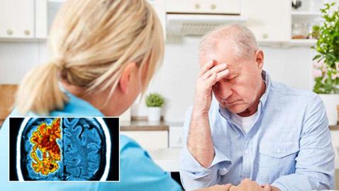 دراسة صادمة تؤكد: الزهايمر يمكن أن ينتقل كعدوى إلى الإنسان!
