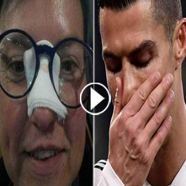 بعد أن كسر أنفها.. هكذا أجبر رونالدو خاطر الضحية