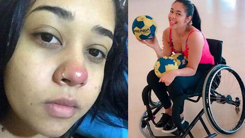 فتاة برازيلية تصاب بالشلل التام بسبب ثقب في الأنف
