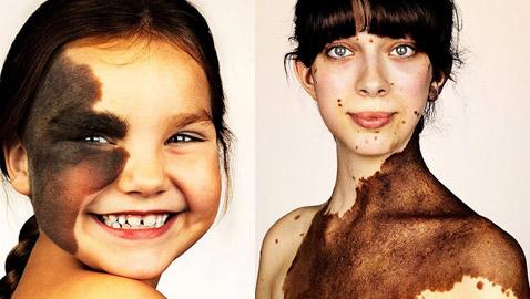 صور وحمات غريبة لأشخاص في جلسة تصوير لتقبل الذات