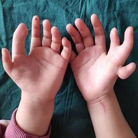 إزالة الأصابع الزائدة لطفلة صينية ولدت بـ14 إصبعا في اليدين! صور