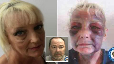 ضربها صديقها وشوهها.. فانتقمت وسجنته 7 سنوات!