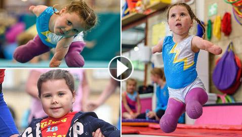 بطلة رغم الظروف.. طفلة فقدت أطرافها تهزم إعاقتها وتصبح نجمة!