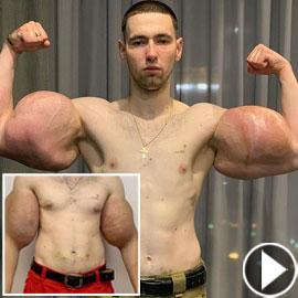 بعد حقن خطيرة.. استئصال عضلات ميتة من ذراع بوباي روسيا