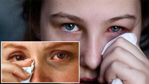 إنفلونزا العيون.. طرق الوقاية والتغلب على الأعراض المزعجة