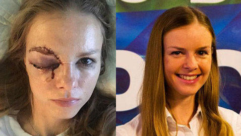 إصابة مروعة لصحفية خلال مباراة لهوكي الجليد كادت تفقدها نظرها
