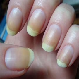 الأظافر الصفراء.. الأسباب والعلامات وطرق العلاج