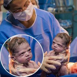 صور طريفة: طفلة تنظر بوجه غاضب إلى طبيبة التوليد في البرازيل