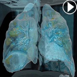 بالفيديو.. كيف تبدو رئة مصاب بفيروس كورونا وما يحصل داخلها؟