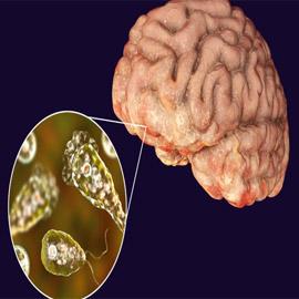 يصيب الدماغ ويدمره.. رصد أولى حالات لمرض خطير والأطباء بحالة رعب