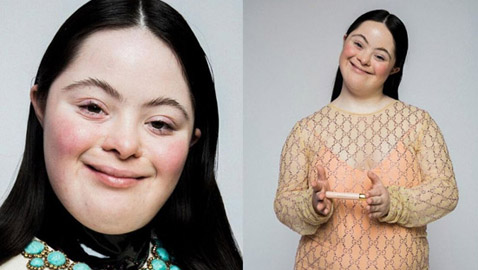 لأول مرة عارضة أزياء بمتلازمة داون تظهر على صفحات مجلة فوغ
