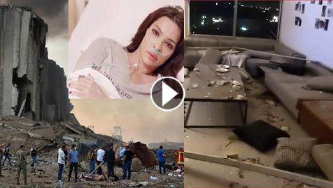 نادين نجيم عقب إصابتها فى انفجار بيروت: بشكر ربي لأنه أعطانى عمرا جديدا