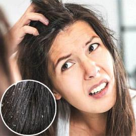 تجنبوا تناول هذه الأطعمة لحماية شعركم من القشرة وإحراجها!