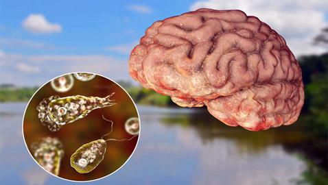 تحذير لمدينة أمريكية من ميكروب قاتل آكل للدماغ في المياه!