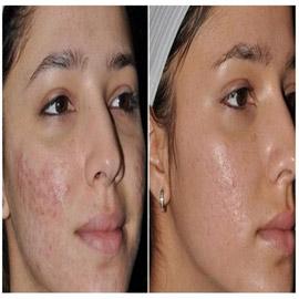حُفر الوجه.. أسبابها وطرق علاجها والوقاية منها!